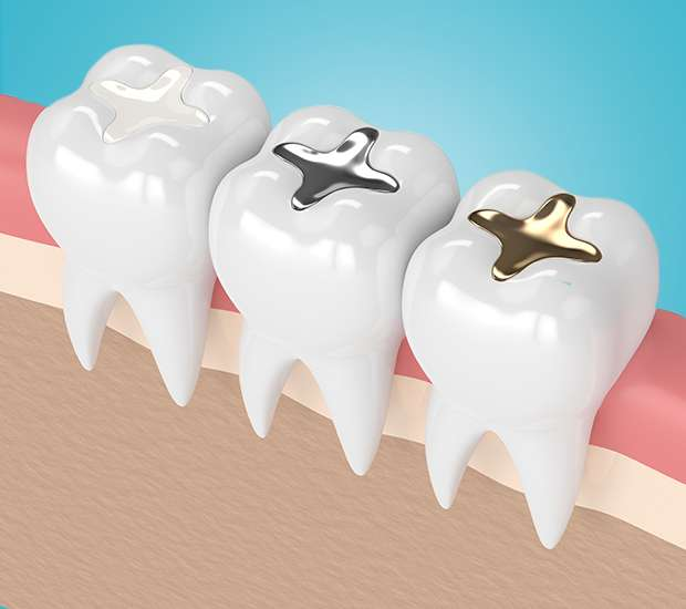 Brentwood Composite Fillings